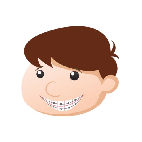 braces-2545700_1920