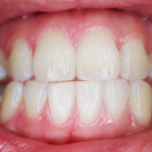 teeth-887338_1280